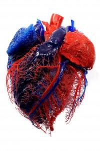 Cardiac care in the former Dutch Antilles